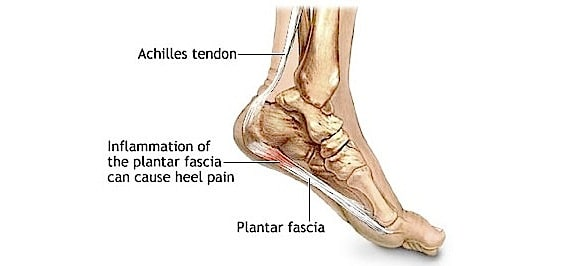 Diagram of the Foot Showing the Plantar Fascia Area